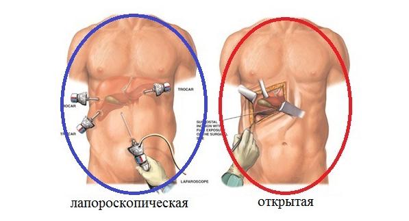 Запор после лапароскопии желчного