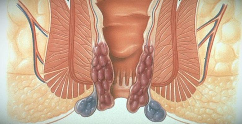 О чем говорит жжение в заднем проходе и как убрать симптом?