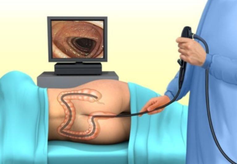 Как подготовиться к колоноскопии в домашних